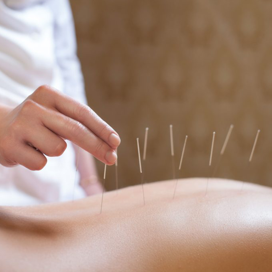 DRY NEEDLING ACUPUNCTURE LONDON